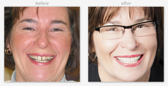 Before and after pictures of a cosmetic dental patient of Maple Grove cosmetic dentist Dr. Jamie Sledd