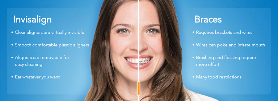clear braces for straight teeth in Maple Grove